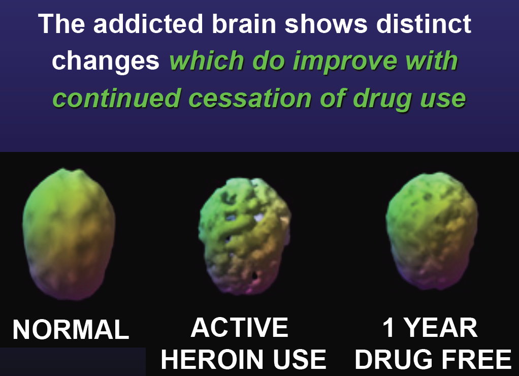 How Heroin Affects The Brain Pictures to Pin on Pinterest